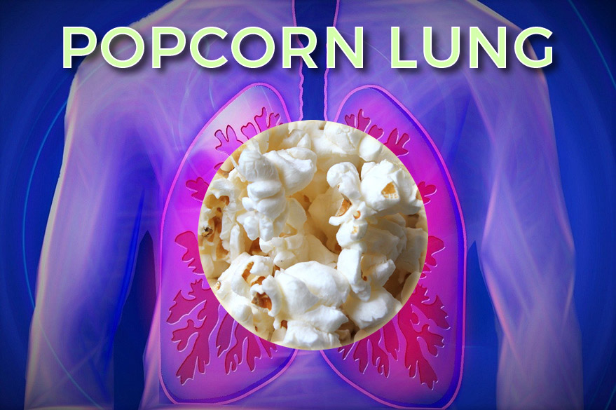 What Is Popcorn Lung